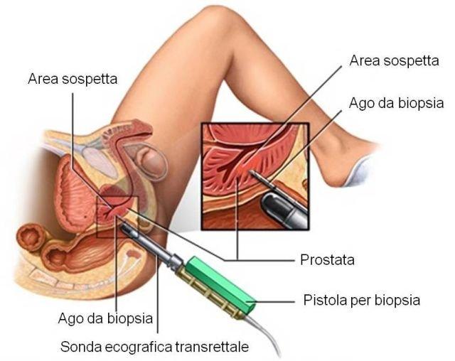 eiaculare dopo aver rimosso la prostata