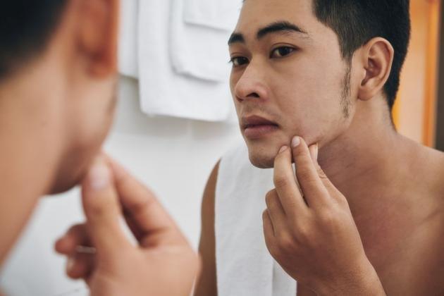 Brufoli sul mento: le cause principali e come eliminarli