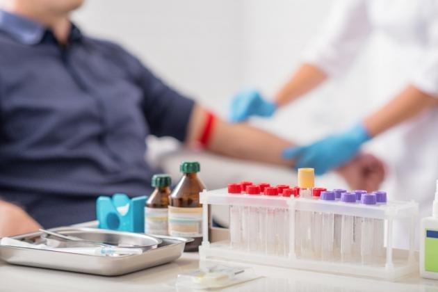Bilirubina indiretta alta o bassa: cause e valori normali