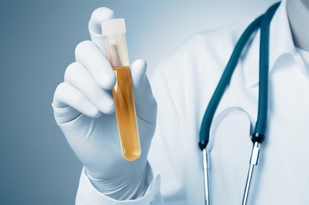 Muco nelle urine: quali sono le cause e esami da fare