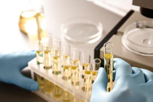 Proteine nelle urine: cosa fare quando il valore è alto