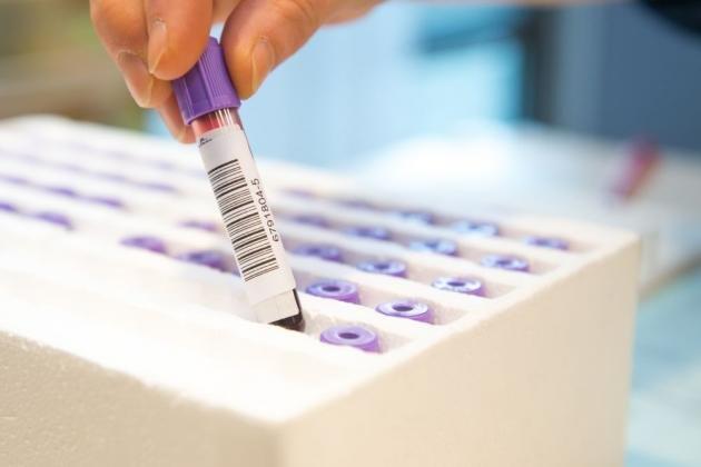 Linfociti altissimi nel sangue: cosa sono, cause e i valori normali