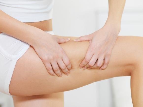 Combattere la cellulite con rimedi low cost