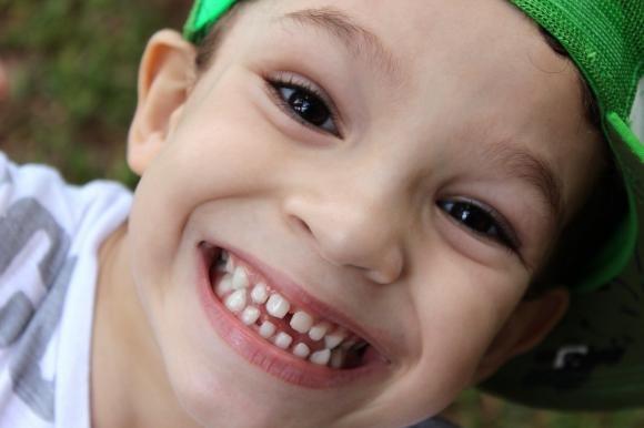 Quando è necessario curare i denti del proprio bimbo