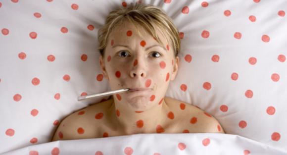 Morbillo: sintomi, cause e cura