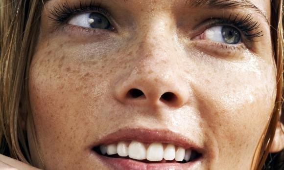 Come eliminare le macchie solari sul viso