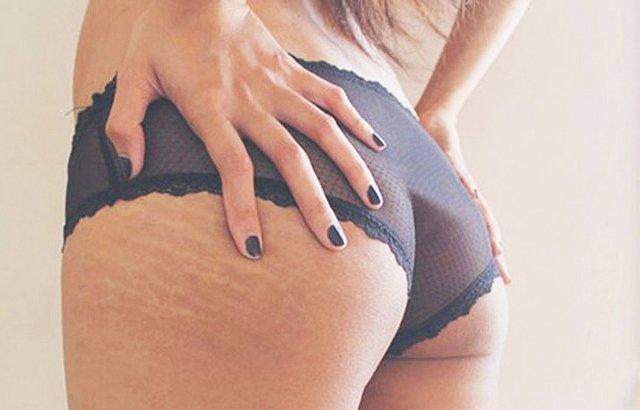 come ridurre il grasso della coscia dopo il parto