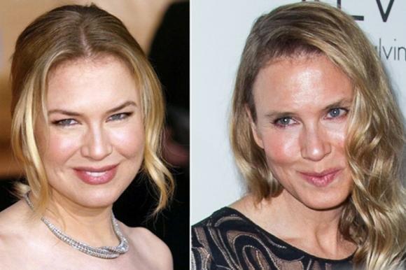 Ecco le foto delle star rovinate dalla chirurgia estetica