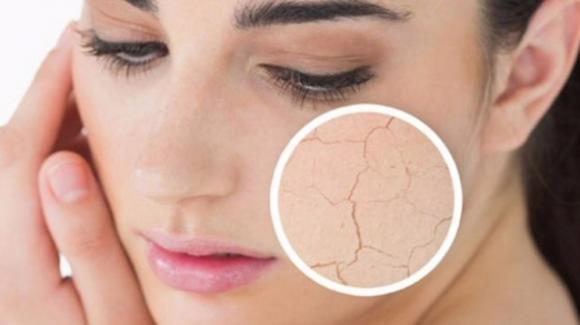 Pelle secca cronica? Le cause e alcuni utili consigli