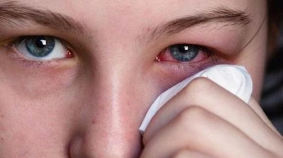 Occhi, come curare la congiuntivite con rimedi naturali