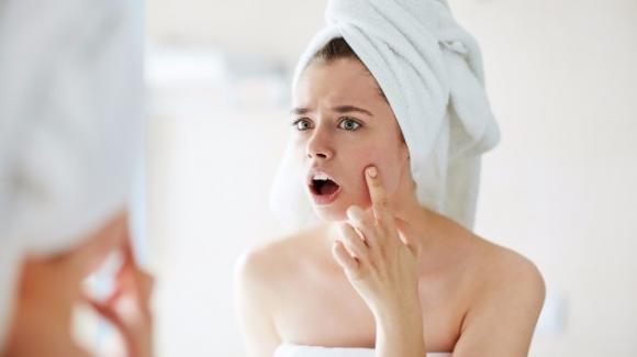 Macchie della pelle: come eliminarle in modo naturale