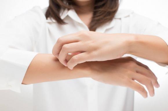 Dermatite atopica: cause, sintomi e rimedi naturali