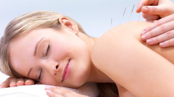 Agopuntura: una terapia antica ma sempre valida