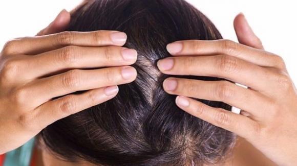 Come trattare la desquamazione del cuoio capelluto