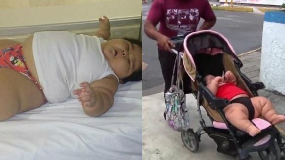 Messico: il piccolo Luis Manuel, affetto da disturbi ormonali, rischia la vita. La sua età vi lascerà basiti!