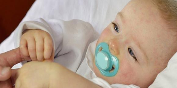 Sesta malattia nei bambini: sintomi, incubazione e contagio
