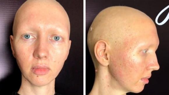 Sentirsi bella nonostante il tumore: una make-up artist realizza il suo sogno