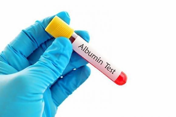 Albumina alta o bassa nel sangue: cause, valori normali e cure