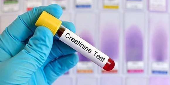 Creatinina alta nel sangue o nelle urine: sintomi, cause, rimedi e dieta