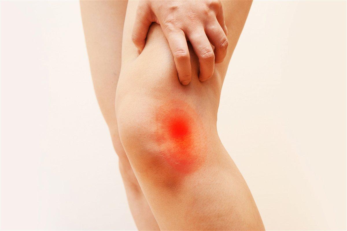 Dolore al ginocchio: i rimedi naturali