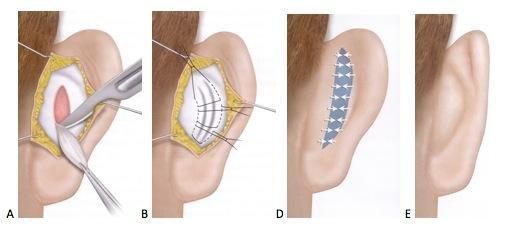 Come correggere le orecchie a sventola otoplastica e for Orecchie a sventola rimedi naturali per adulti