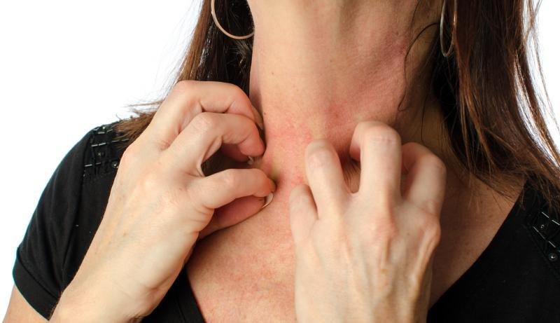 fungo della pelle sul trattamento del viso