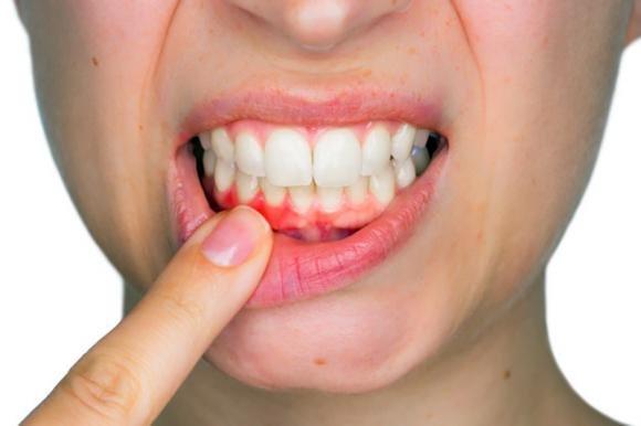 Gengive infiammate: cosa fare e rimedi naturali efficaci