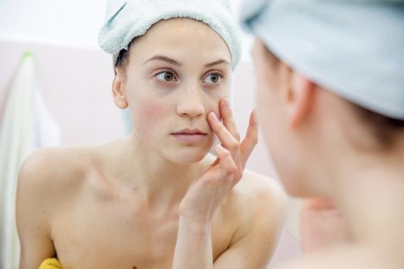 Pori dilatati sul viso: rimedi naturali e terapia medica indicata