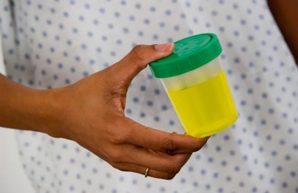 Proteine nelle urine in gravidanza: cause, valori normali e cosa si deve fare