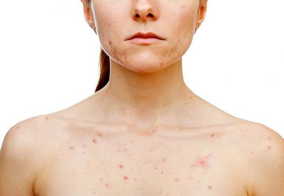 Puntini rossi sulla pelle: le cause principali, cura e rimedi naturali