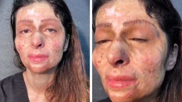 Una terribile ustione le deturpa il viso: grazie al make up riscopre la sua bellezza!