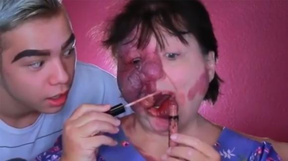La donna soffre di una rara malattia: il figlio la trasforma con il make up in modo stupendo