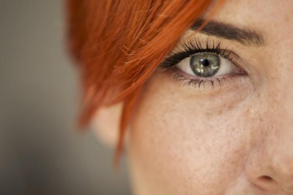 Macchioline sul viso: le cause, la cura e i rimedi naturali