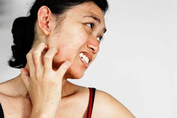 Cheratosi pilare: le cause, le cure e i rimedi naturali