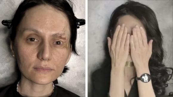 Dopo una brutta malattia, desidera rivedersi bella per una volta: una make up artist realizza il suo sogno