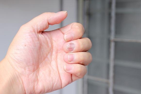 Dolore alle mani: che cosa fare