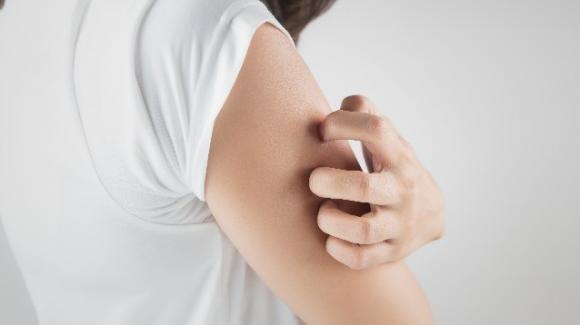 Punture di zanzara: rimedi naturali per ridurre gonfiore e prurito
