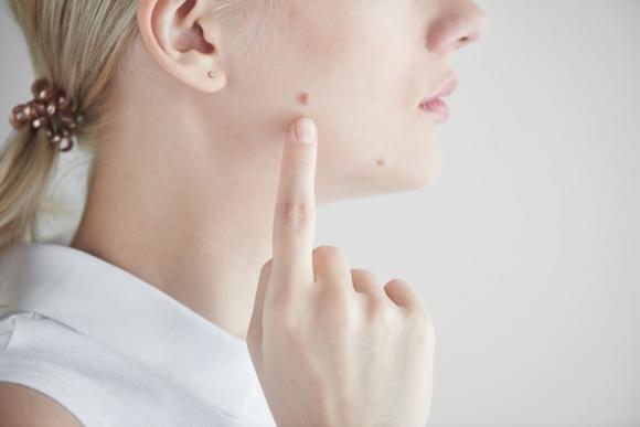 Fibroma pendulo: cos'è e come eliminarlo