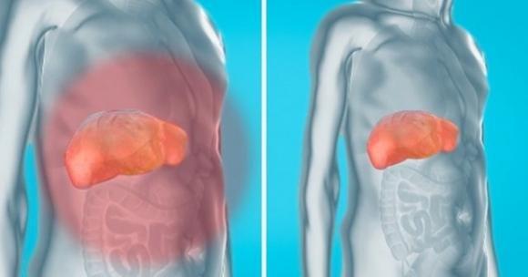 come eliminare le tossine dal fegato