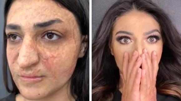 Le ustioni le deturpavano il viso: un make-up artist riaccende il sorriso di questa donna