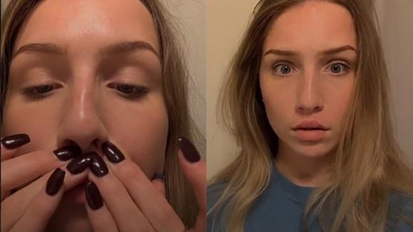 Incolla il labbro superiore alla pelle sotto il naso: una nuova moda spopola fra i giovani