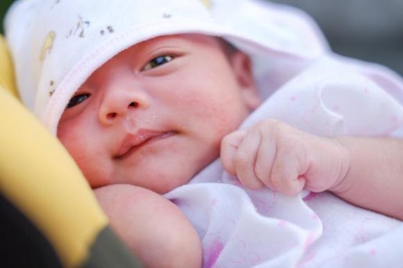 Acne neonatale: cause e rimedi per i brufoli del neonato