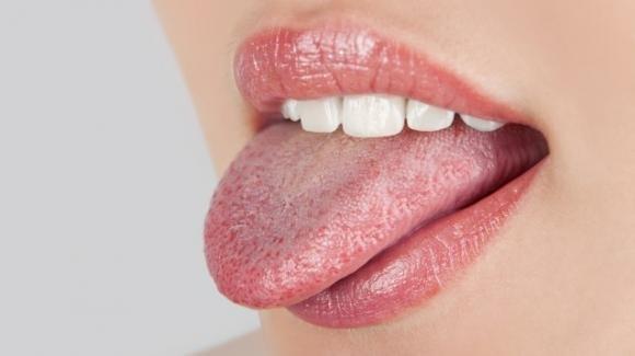 Macchie sulla lingua: da cosa dipendono e come devono essere trattate